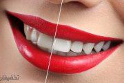با اصلاح طرح لبخند و انواع روشهای آن آشنا شوید