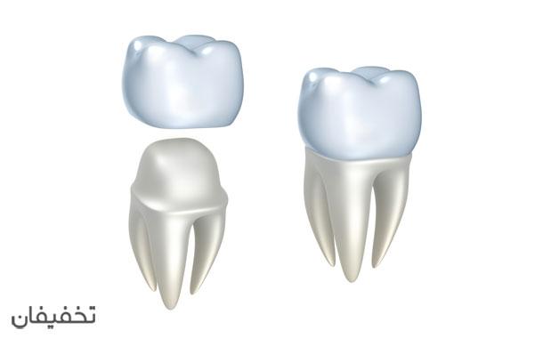 روکش دندان یک روش سریع برای زیبا کردن دندانهای آسیب دیده است.