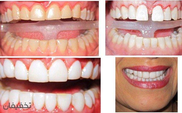 بن تخفیف ۶۳ درصدی اصلاح طرح لبخند به روش کامپوزیت ونیر بدون تراش در مطب دندانپزشکی دکتر نجاریان