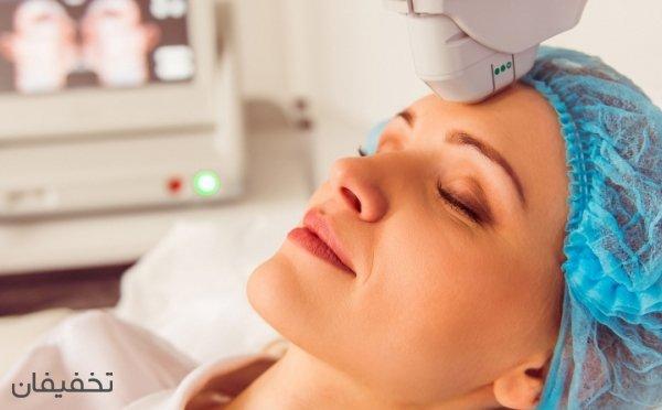 ۹۰% تخفیف لیزر موهای زائد صورت و بدن  با دستگاه shr درکلینیک افرا
