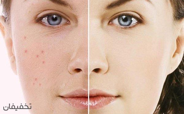 ۹۹% تخفیف دوره آموزشی مراقبت پوست و مو (Skin Care) در انجمن پزشکی ملل متحد در دانشگاه تهران